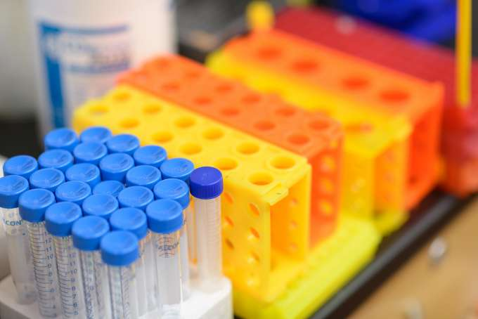 a row of blue, yellow and orange test tubes